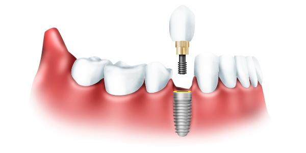Новинки в протезировании зубов